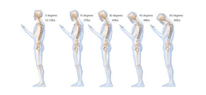 Shoulder Pain Mobile Phone Use Chiropractor